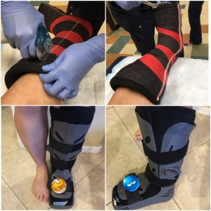 Cast Removal and new boot