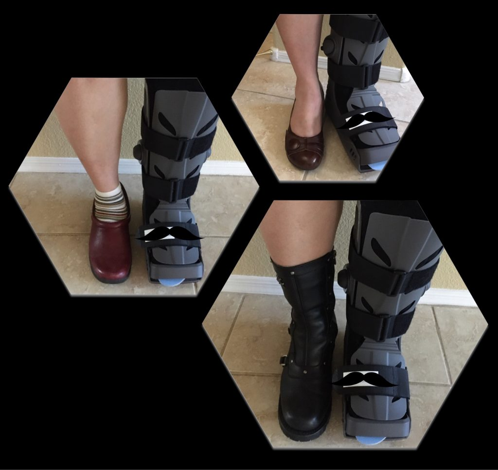 Trying out footwear to facilitate walking with minimal limp in the walking boot